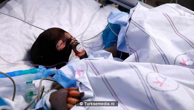 turkije-probeert-zwaargewonde-syrische-kinderen-te-redden-2