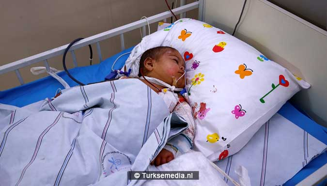 turkije-probeert-zwaargewonde-syrische-kinderen-te-redden-6