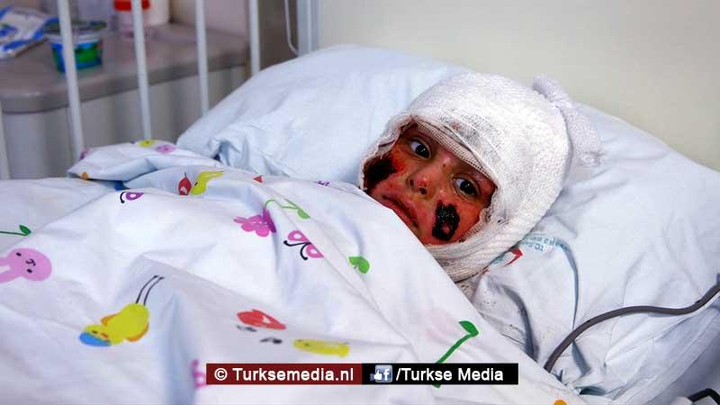 turkije-probeert-zwaargewonde-syrische-kinderen-te-redden