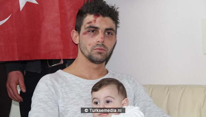 Door politiehond gebeten Turkse Nederlander gebeurtenissen pijnlijk4