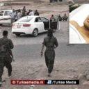 Turkije verzorgt 17-jarige gewonde YPG-terrorist