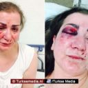 Turkse vrouw aangevallen in tram