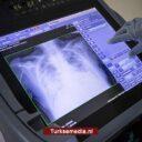 Turkse coronacijfers weer stabiel: 259.000 patiënten hersteld